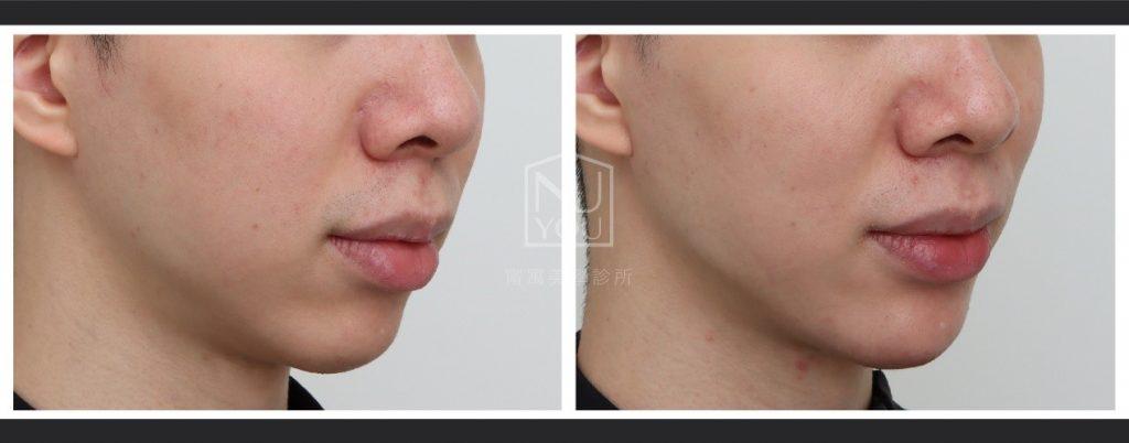 喬雅登在近期也出了其硬度最高的新劑型- Volux,適合打在下巴
