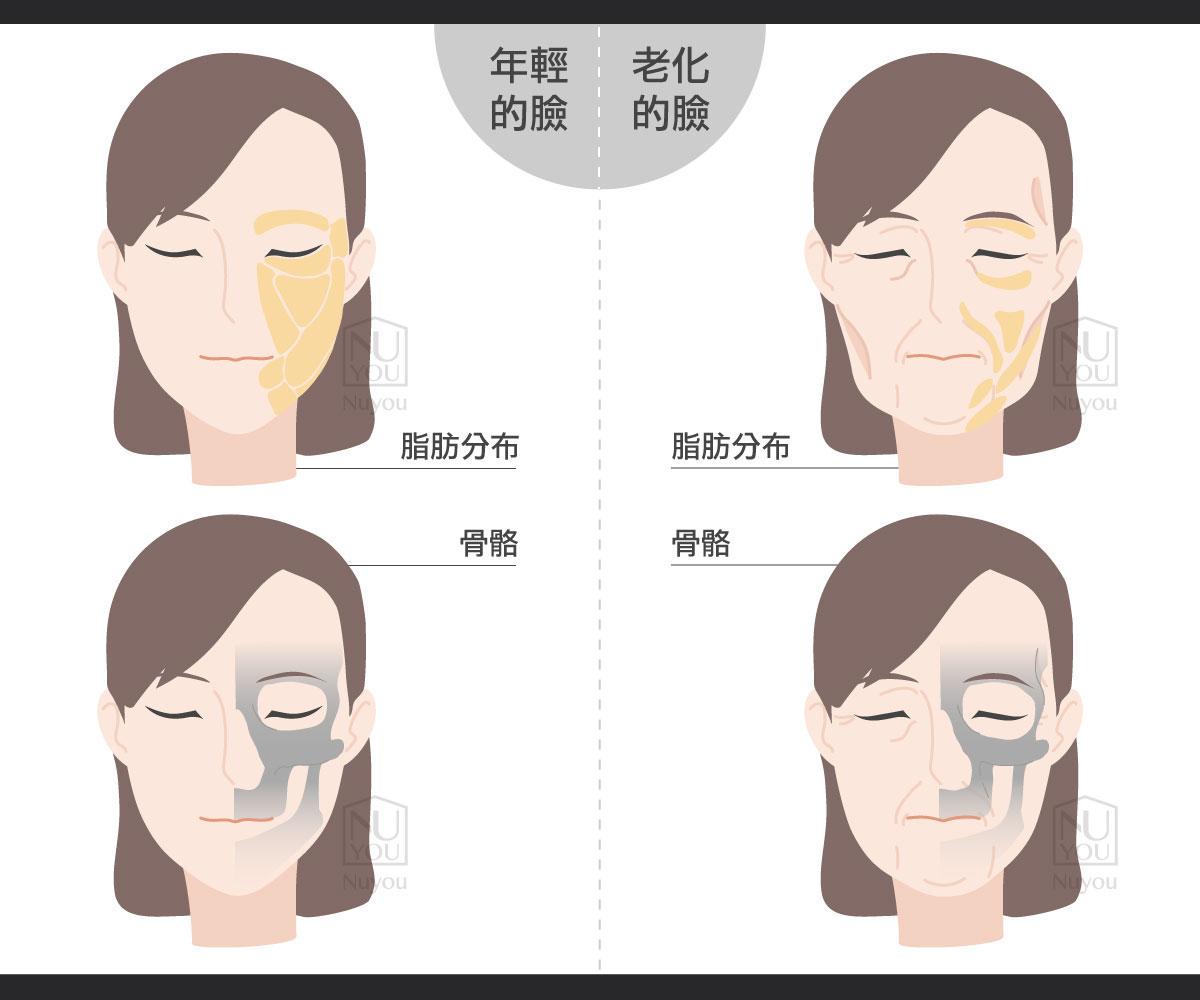 會什麼老了會有法令紋臉凹陷