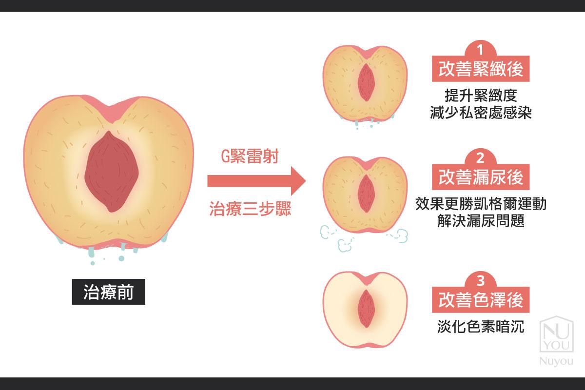 g緊雷射改善產後漏尿外觀顏色跟皺褶鬆弛