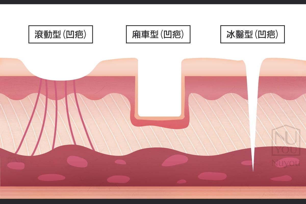 痘疤凹疤有哪幾種類型