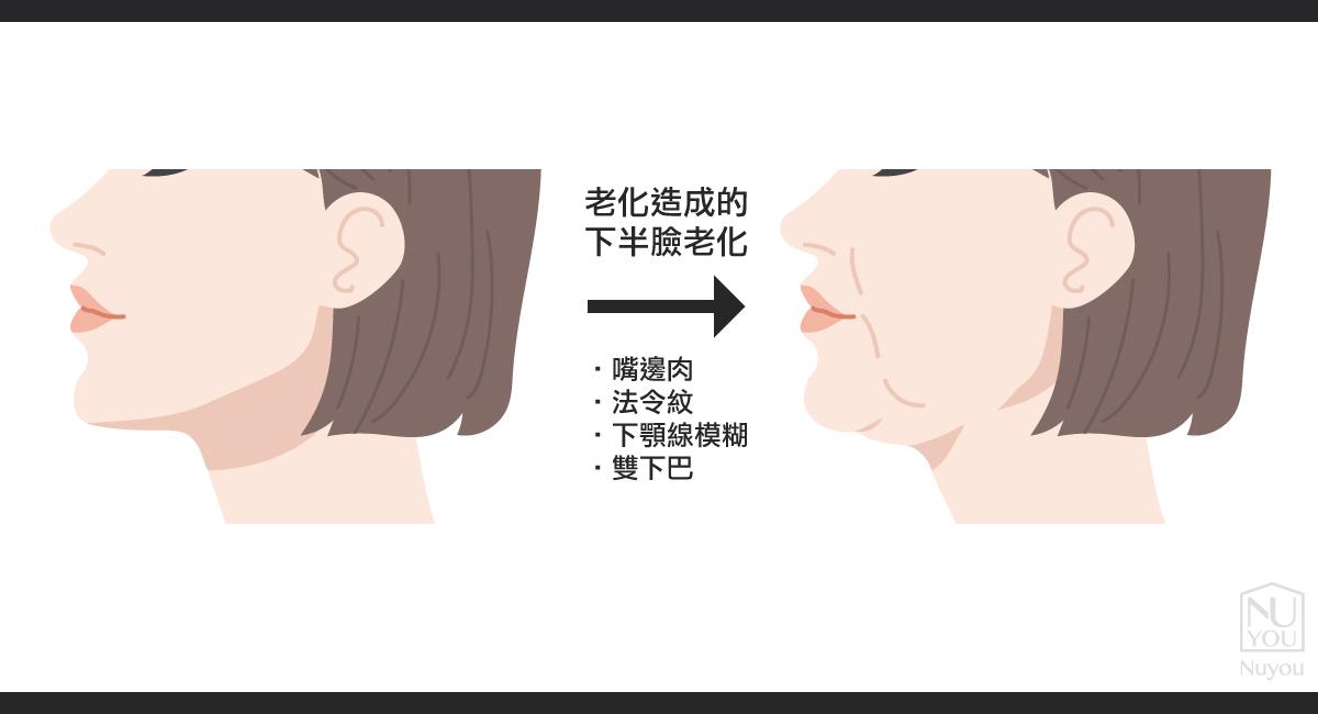老化造成的雙下巴