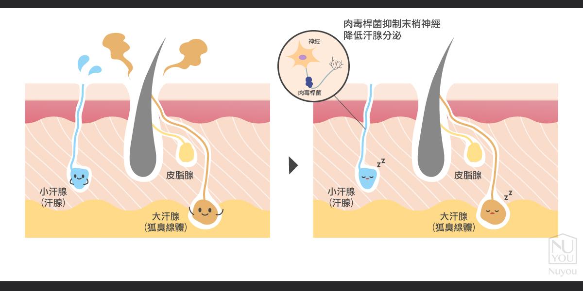 肉毒桿菌作用原理