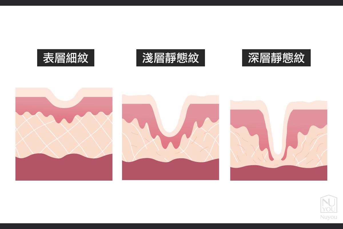 深淺靜態紋和淺層靜態紋