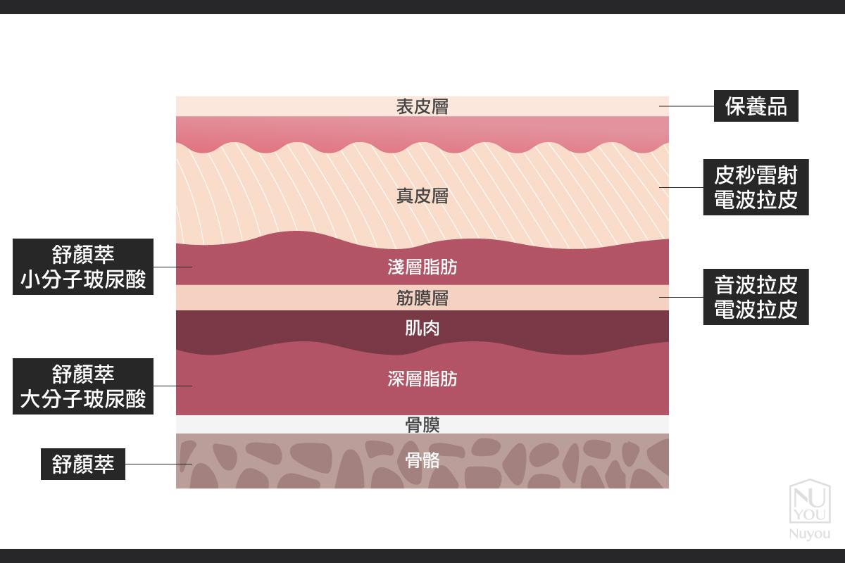 不同皺紋適合的治療方式