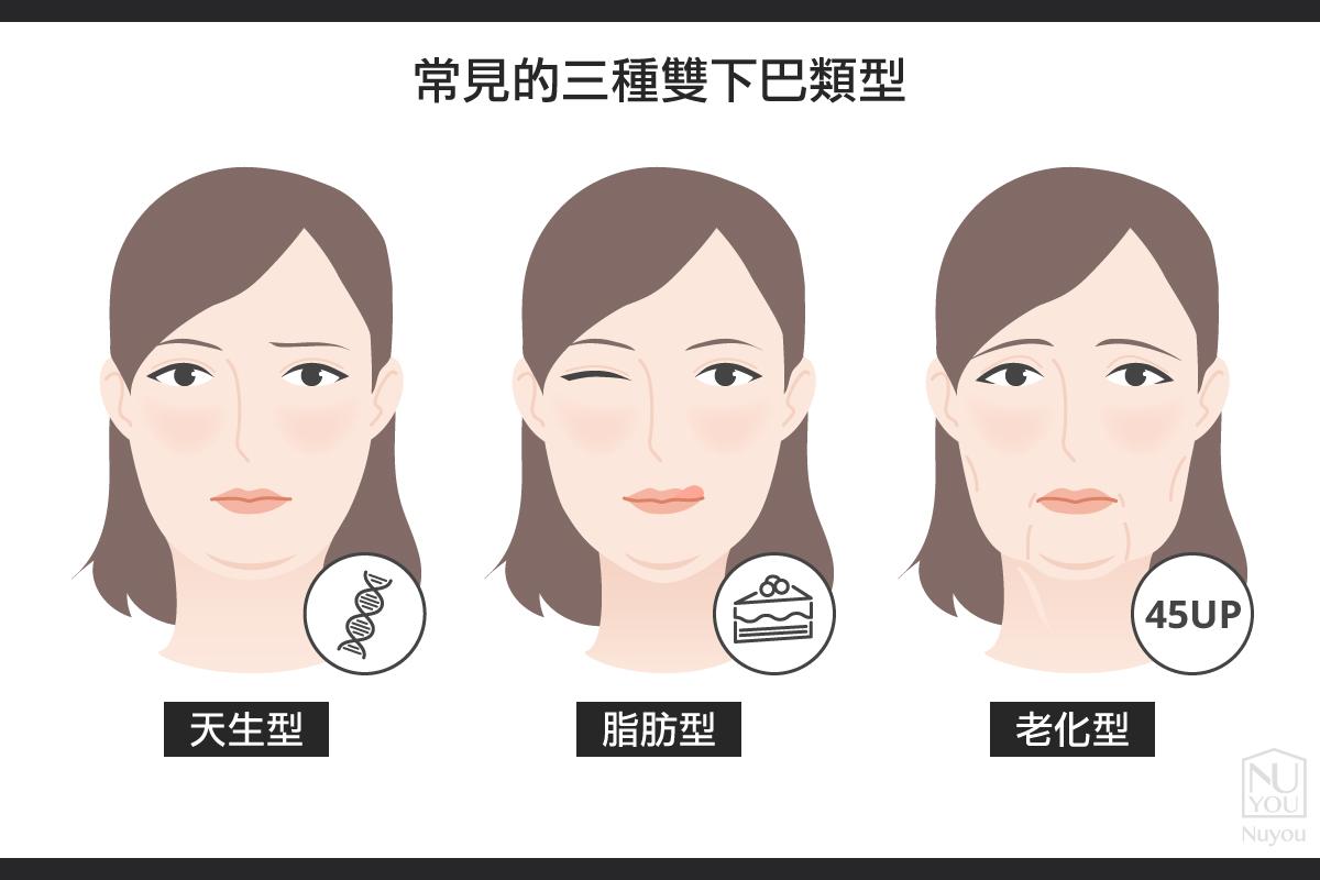 常見的三種雙下巴類型