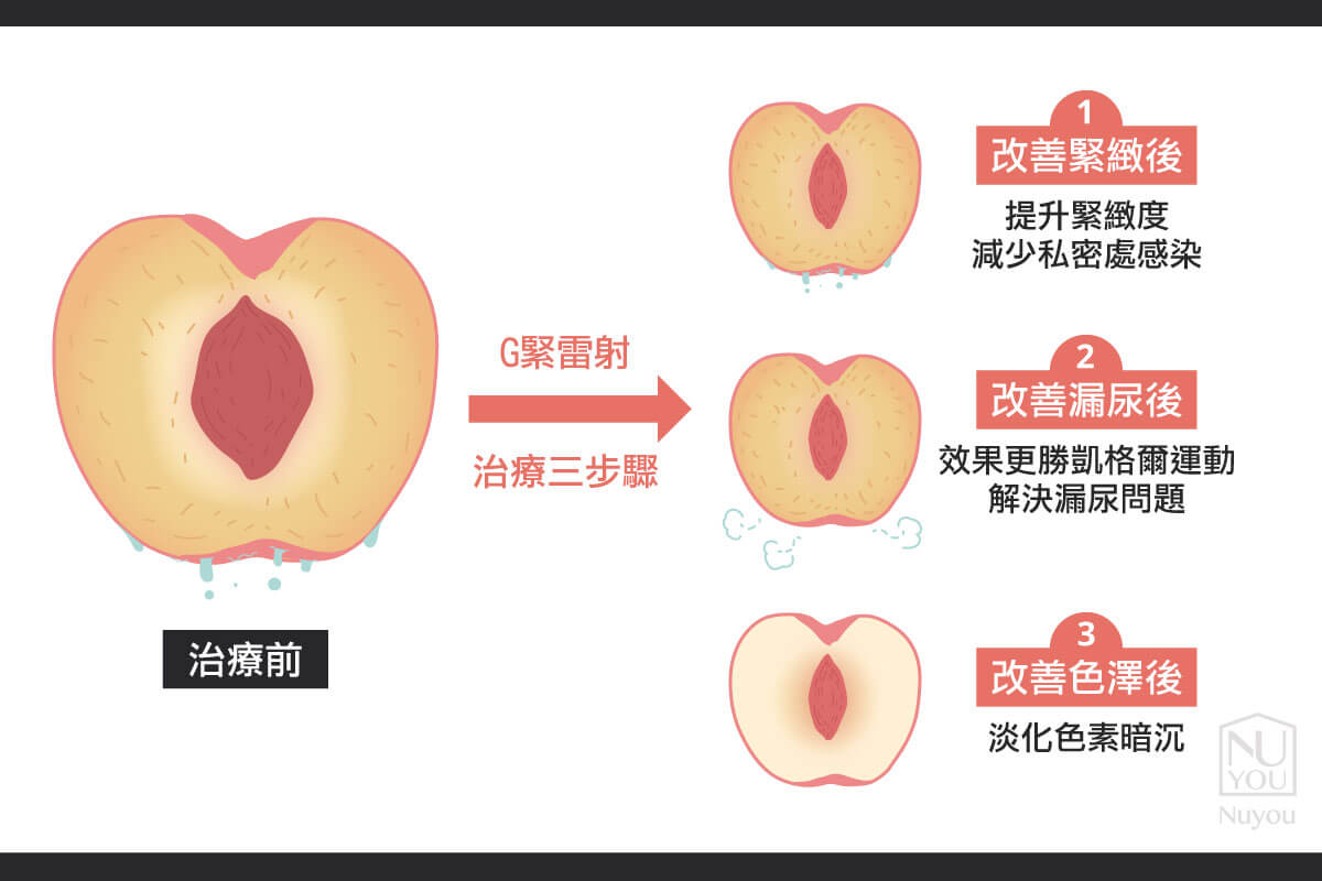 Fotona G緊雷射治療三步驟