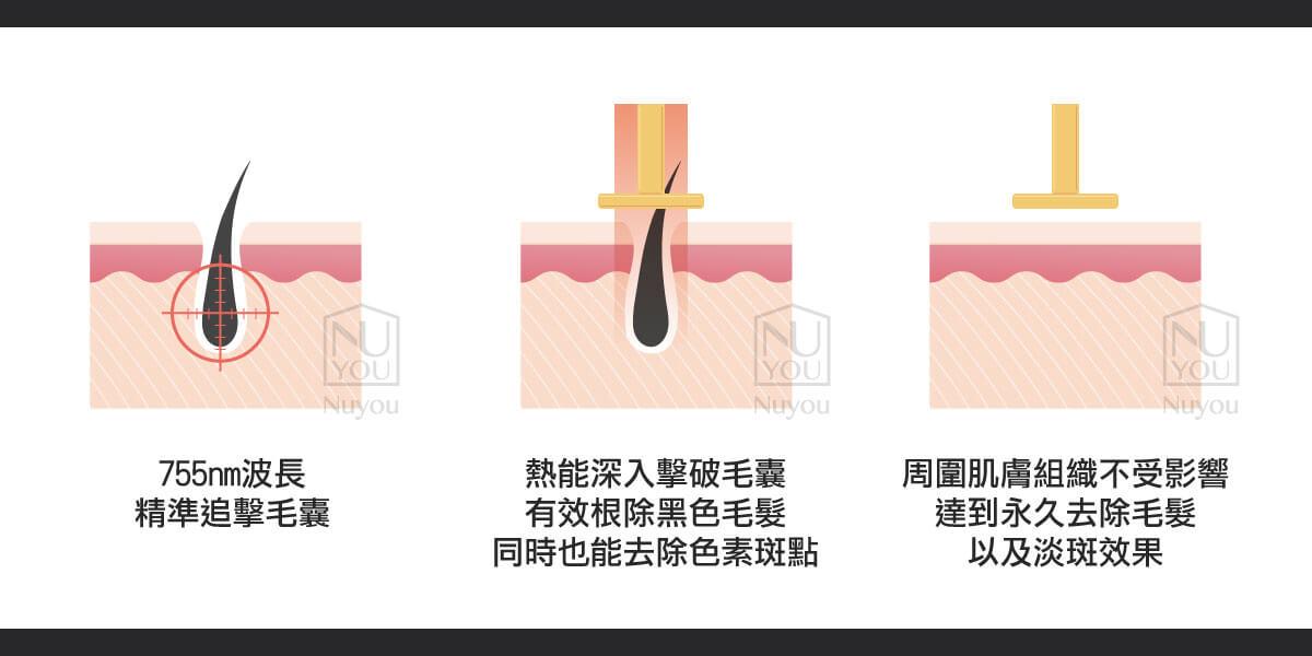 GentleLase Pro-U雷射作用原理