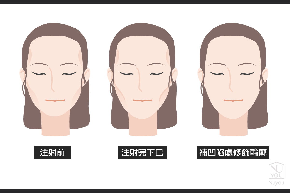 玻尿酸改善下巴、修飾輪廓