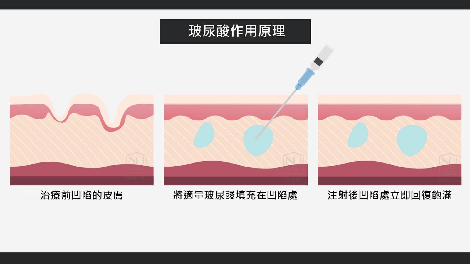 玻尿酸作用原理