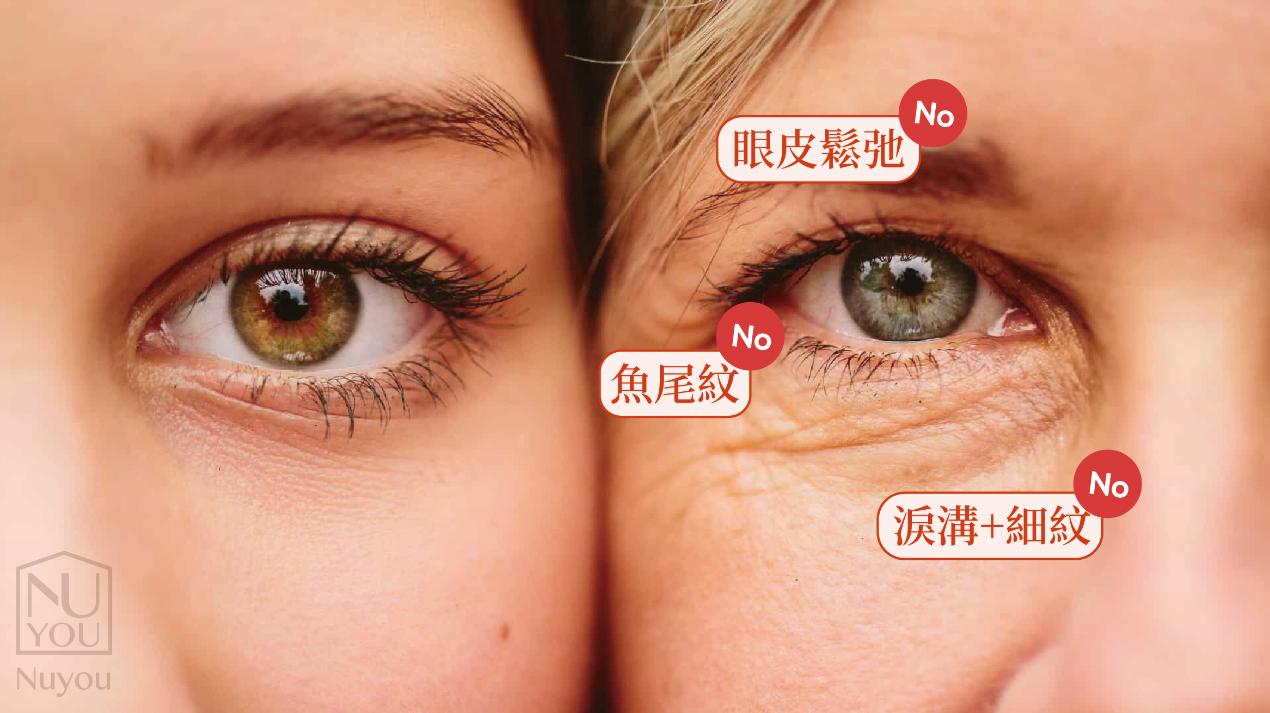 有眼周皺紋vs.沒有眼周皺紋
