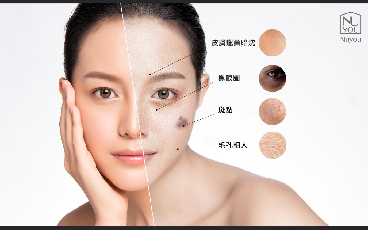 熬夜導致的肌膚問題