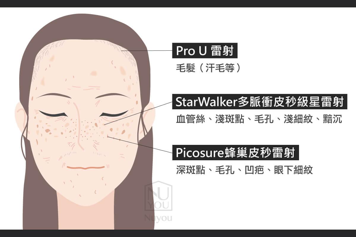 Pro-U StarWalker Picosure755治療部位