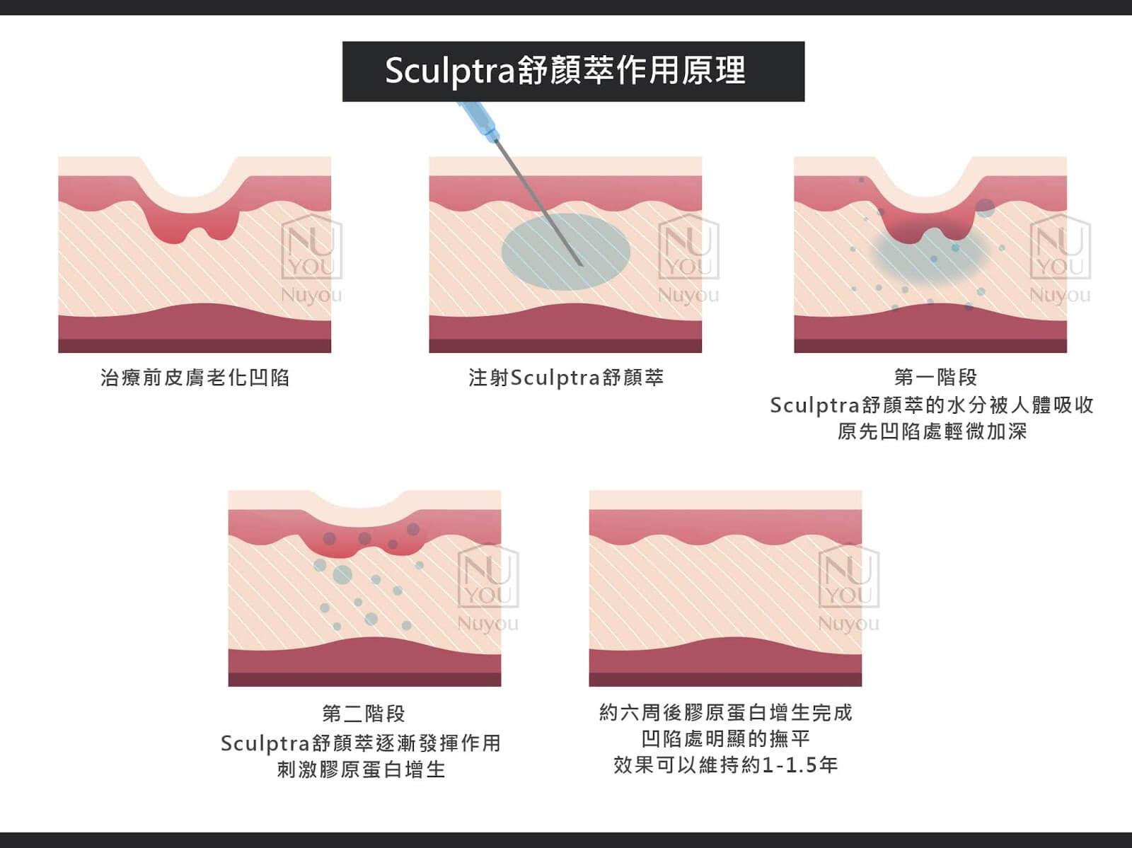Sculptra舒顏萃作用原理