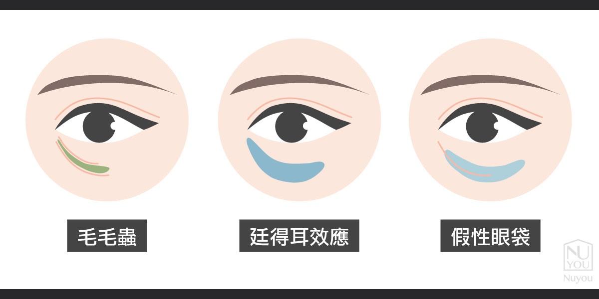 眼周韌帶鬆緊度