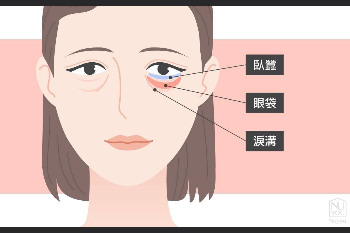 淚溝是什麼