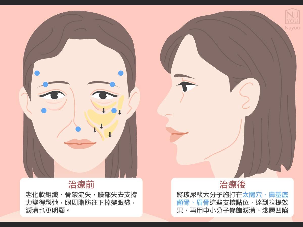 淚溝治療前後差異
