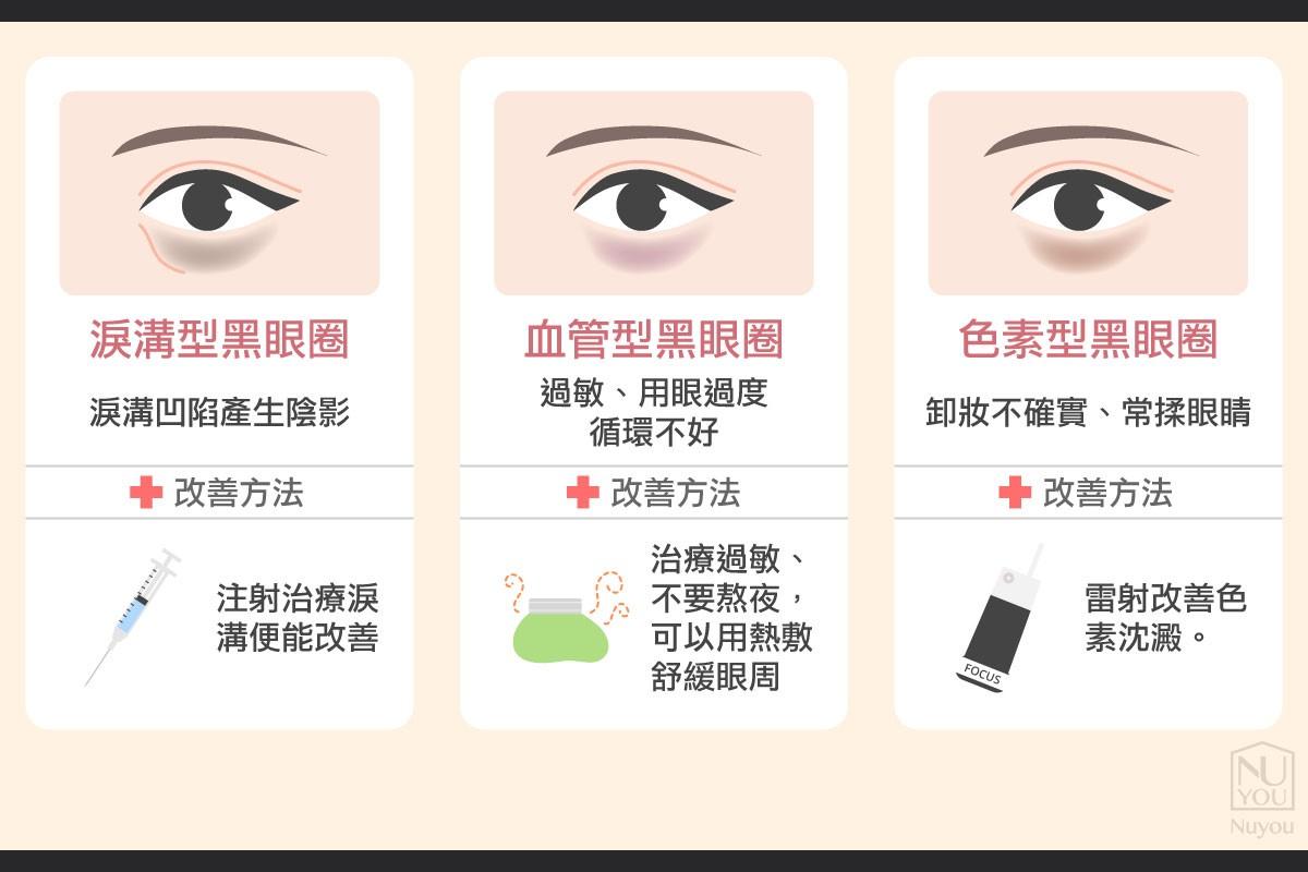 玻尿酸改善結構性淚溝