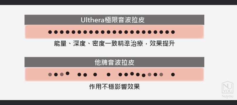 Ulthera音波拉皮和他牌音波拉皮差異