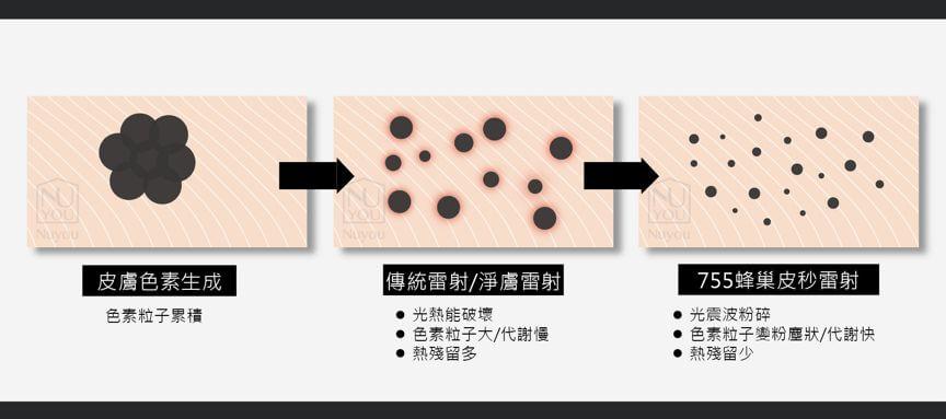 三步驟消除黑色素