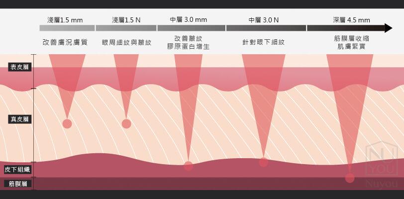 Ulthera音波拉提治療深度